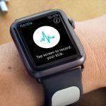 С помощью Apple Watch теперь можно делать кардиограмму